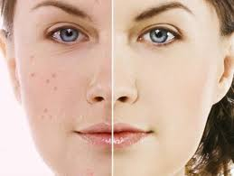 Effective tips to remove pimples overnight