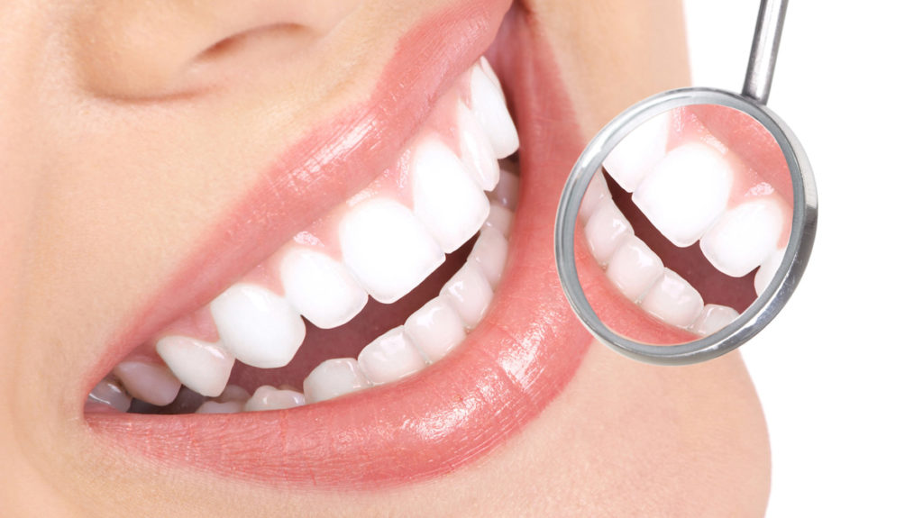 Dental Implants Process
