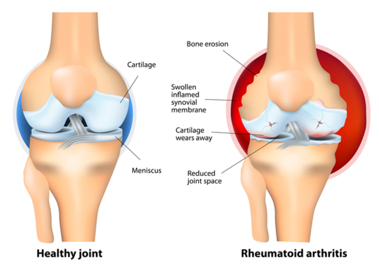 How to manage and cure for Rheumatoid Arthritis