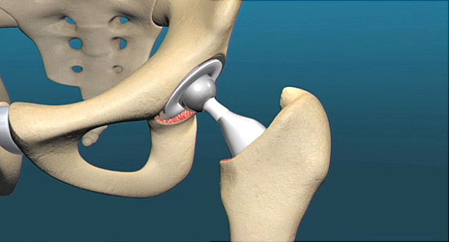 Hip Replacement May Also Ease Back Pain