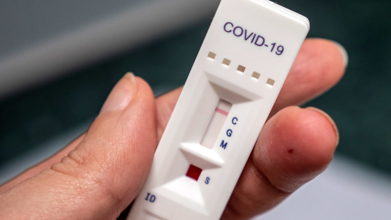Accuracy of COVID-19 Antibody Tests Varies Widely