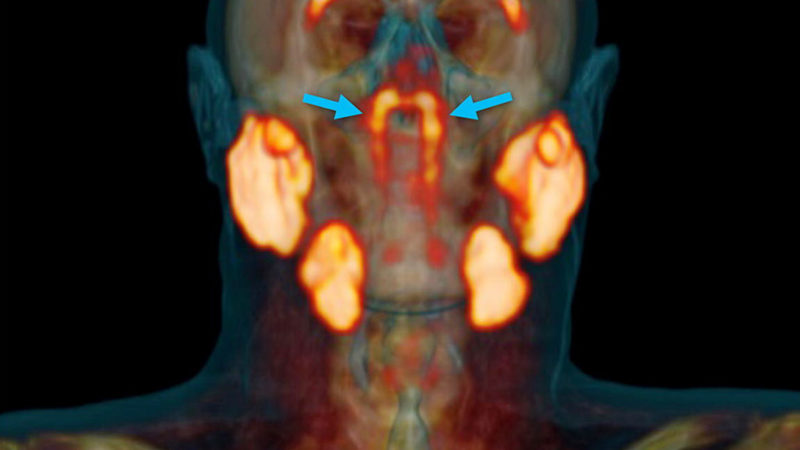 Scientists Discover New Organs in the Throat