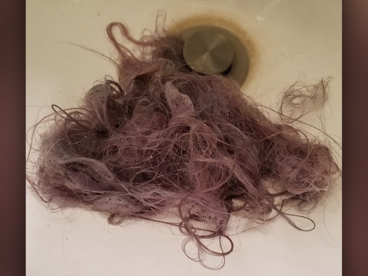 Losing Your Hair Because of Pandemic Stress?