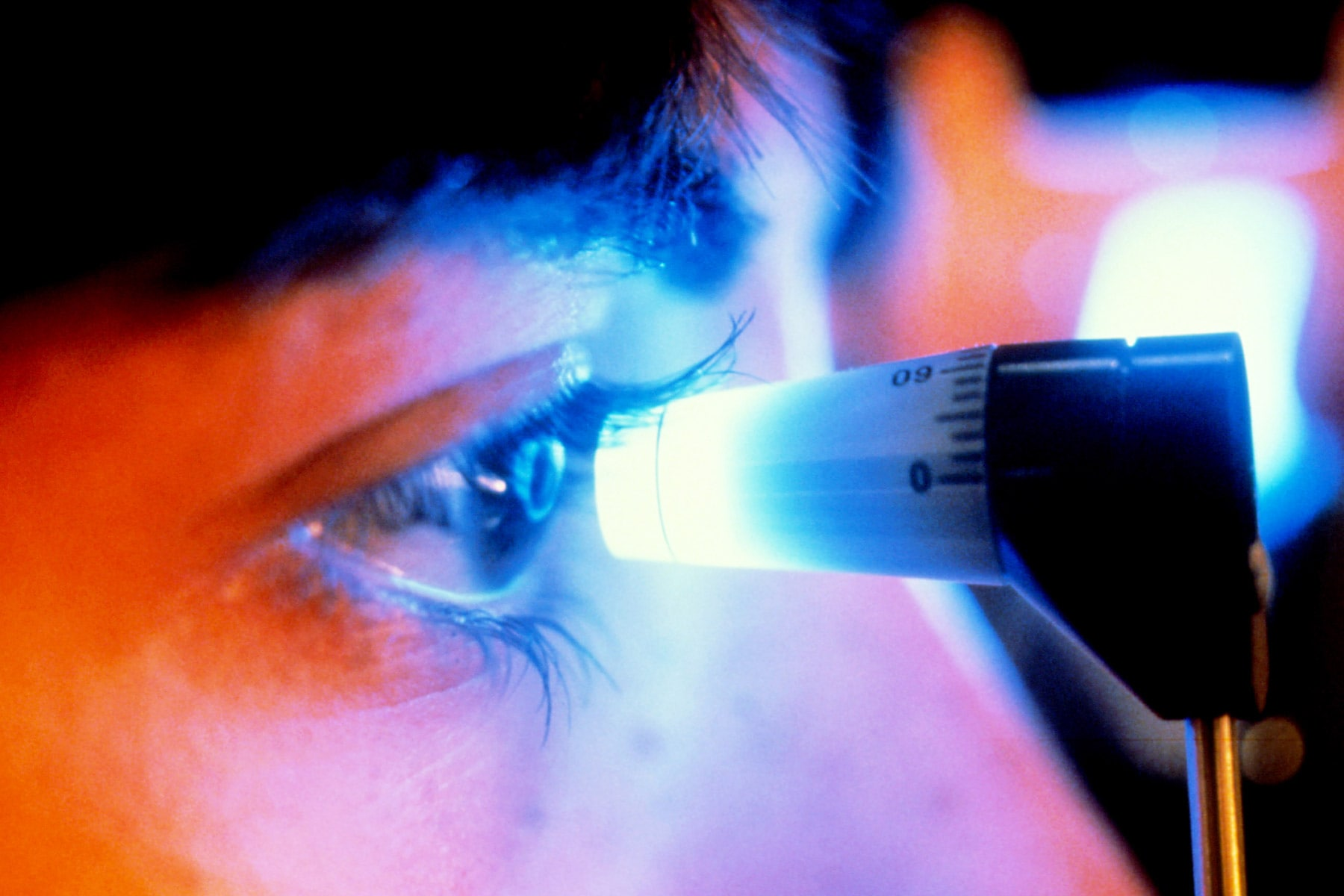 photo of eye pressure test for glaucoma